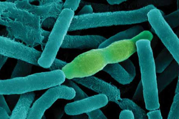 Bacteria Anthrax